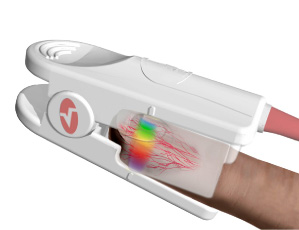 Rainbow Pulse CO-Oximetry